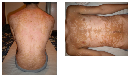 Reiki and Psoriasis - after treatment