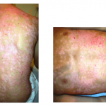 Initial Condition - Psoriasis